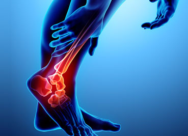 Physical Therapy for Ankle Pain